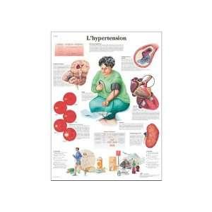 UV Resistant Laminated Paper Lhypertension Anatomical (Hypertension